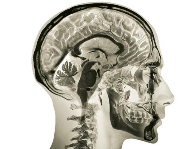 x-ray of human skull ()