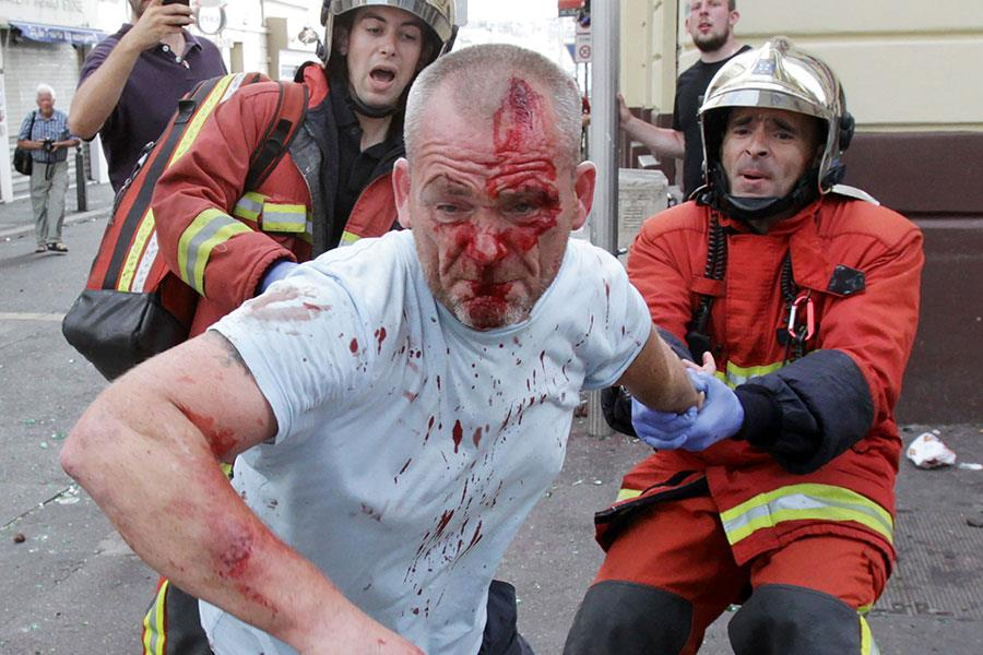 Man bloodied from fighting ()