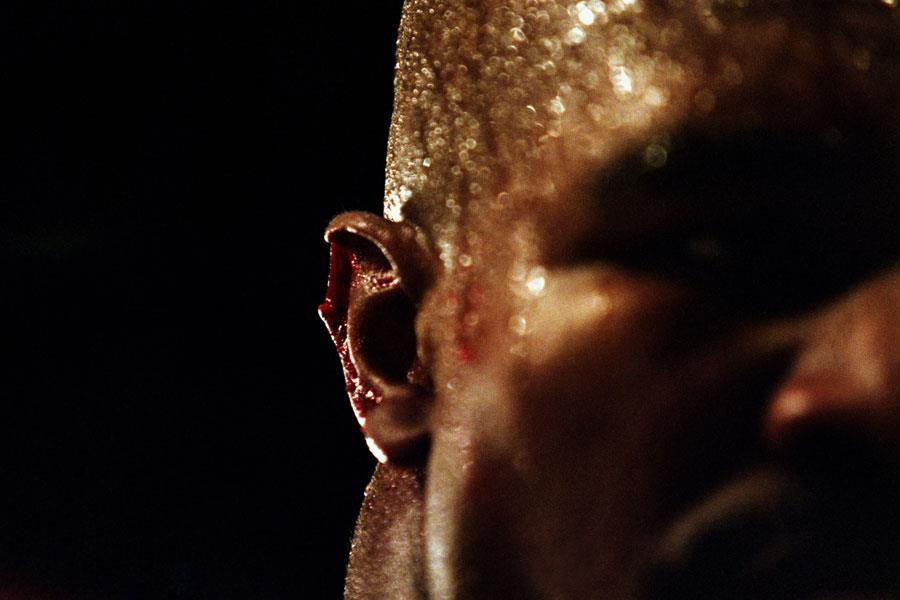 Evander Holyfield Ear ()
