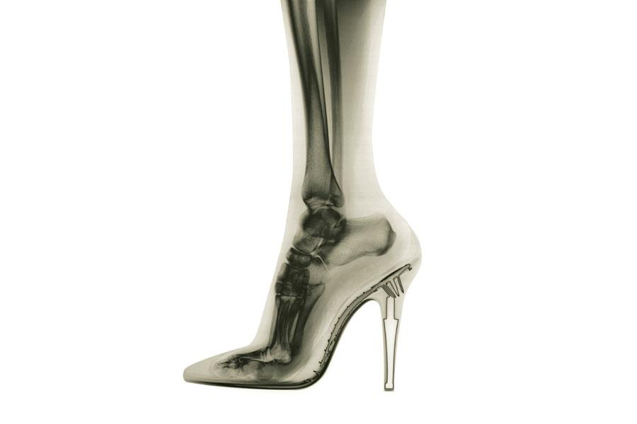 x-ray of ankle in high-heel shoe ()